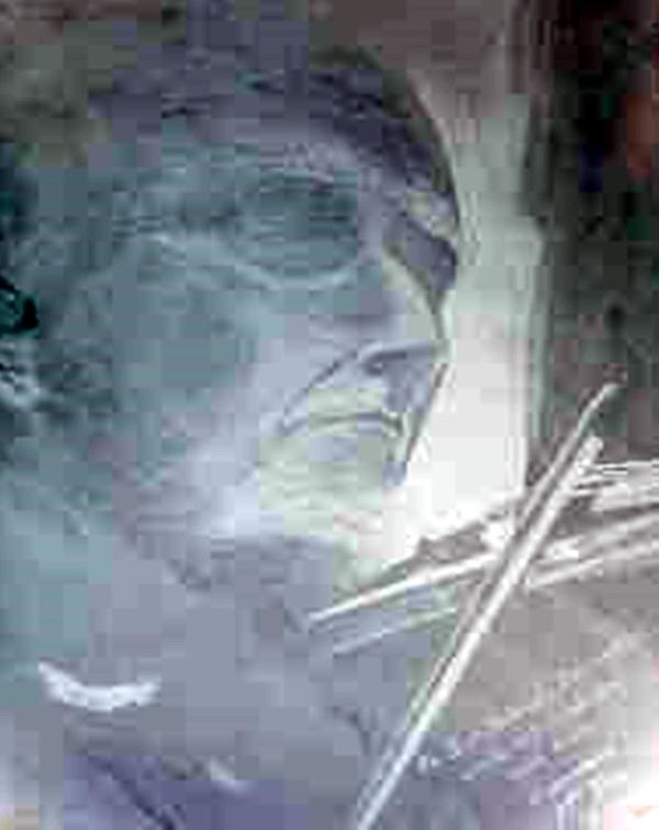 Sir Yehudi Menunhin | Dr. Angel Escudero Juan